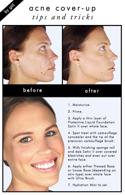acne-coverup-final2