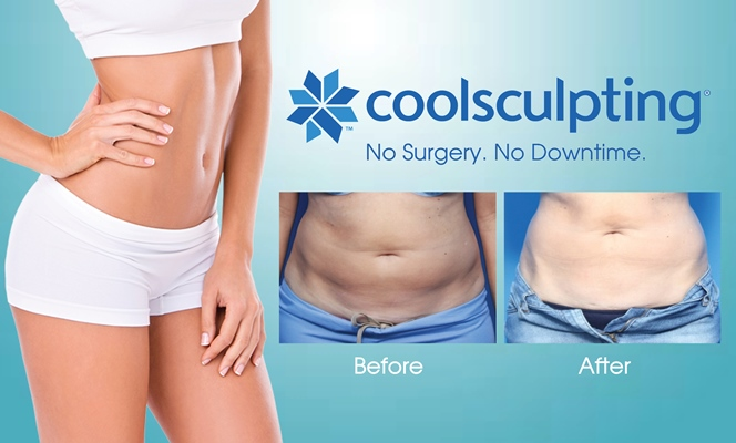 Image result for coolsculpting